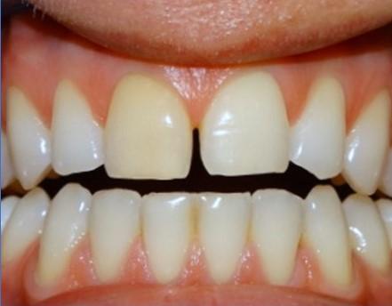 przerwa między jedynkami dentysta łódź meritum