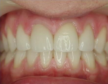 licówki porcelanowe dentysta łódź meritum