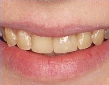 liczne wypełnienia dentysta łódź meritum