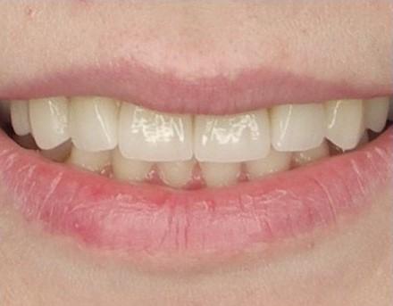 przebrwione zęby pokryte licówkami dentysta łódź meritum