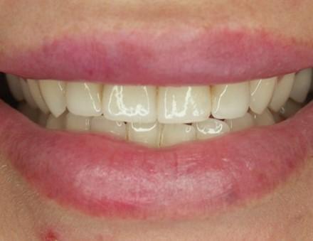 10-cio letnie licówki dentysta łódź meritum
