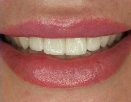 wydłużenie zębów dentysta łódź meritum