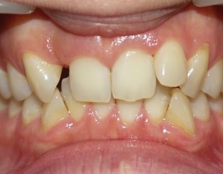brak dwójki górnej dentysta łódź meritum
