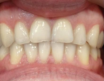 starte zęby dentysta łódź meritum