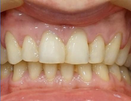 przebarwienia zębów gabinet stomatologiczny łódź