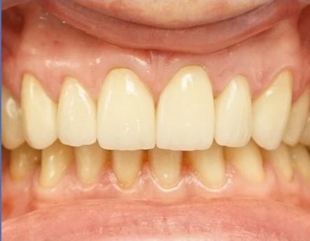 licówki porcelanowe gabinet stomatologiczny łódź